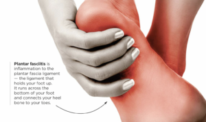 Pic of woman holding bottom of her foot that is red and inflamed with a brief text description of that Plantar Fasciitis is.
