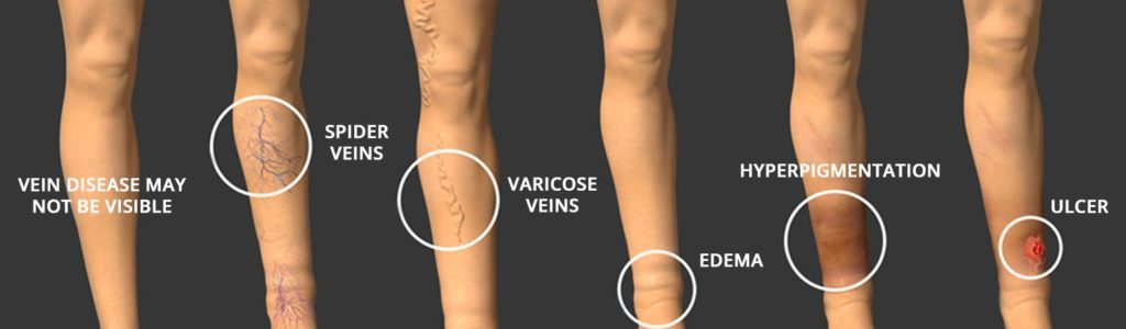 Varicose Vein Progression